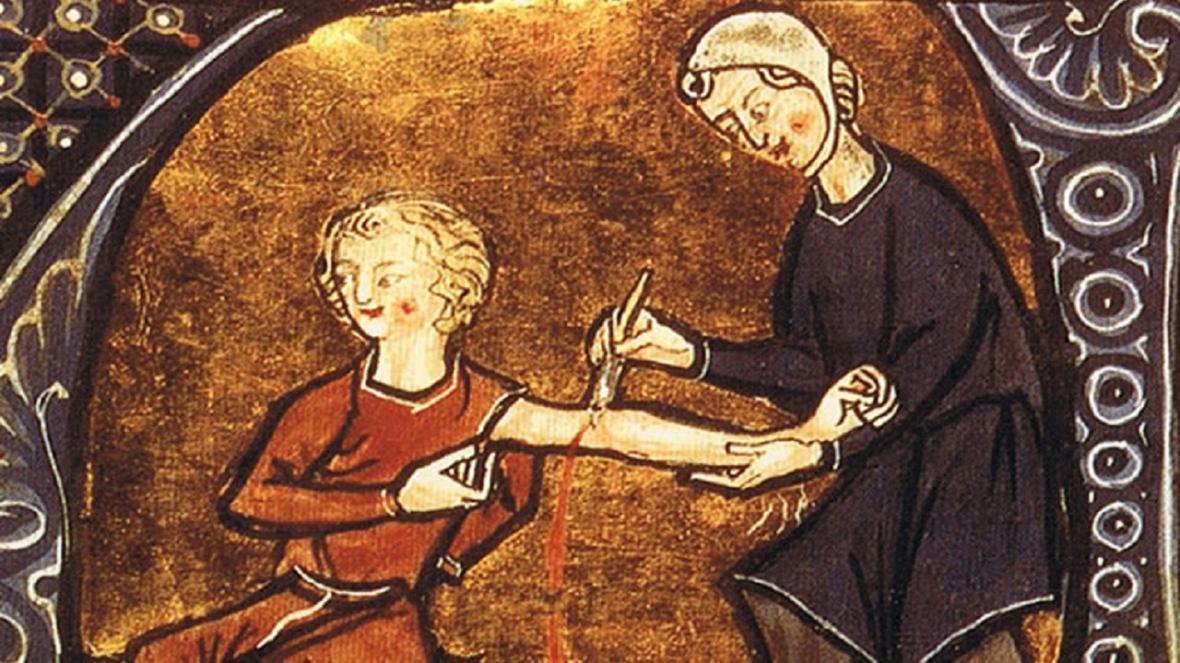 عجیب ترین روش های درمانی در طول تاریخ