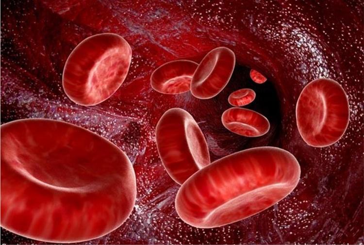 کم خونی؛ نشانه ها، علائم و درمان های آن